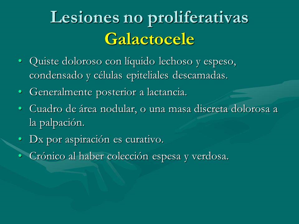 Lesiones no proliferativas Galactocele Quiste doloroso con líquido lechoso y espeso, condensado y células epiteliales descamadas.Quiste doloroso con l