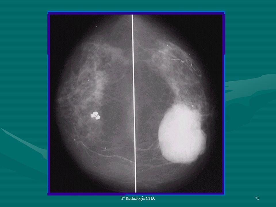 Sº Radiología CHA75