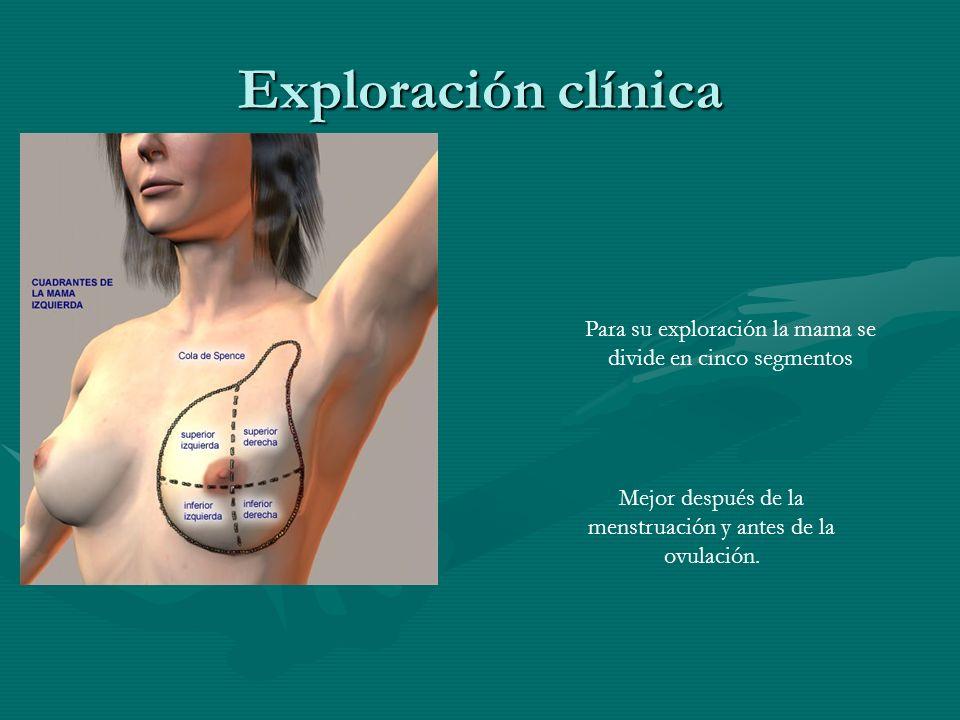 Exploración clínica Para su exploración la mama se divide en cinco segmentos Mejor después de la menstruación y antes de la ovulación.