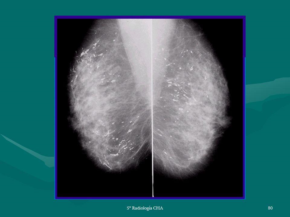 Sº Radiología CHA80