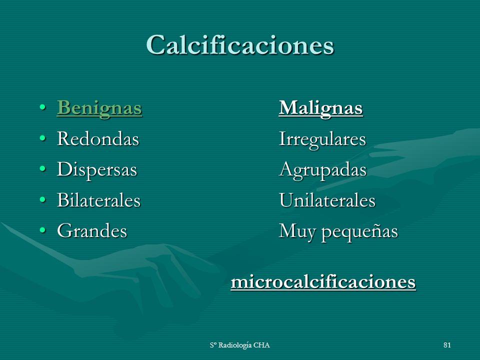 Sº Radiología CHA81 Calcificaciones BenignasMalignasBenignasMalignas Redondas IrregularesRedondas Irregulares DispersasAgrupadasDispersasAgrupadas Bil