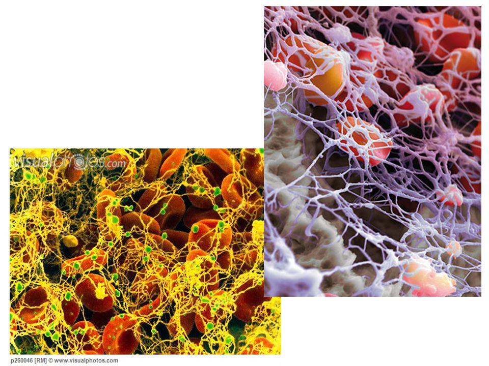 http://www.visualphotos.com/photo/1x6009018/ coloured_sem_of_a_blo od_clot_thrombus_p260 046.jpg http://www.nature.com /emboj/journal/v29/n2 4/images/