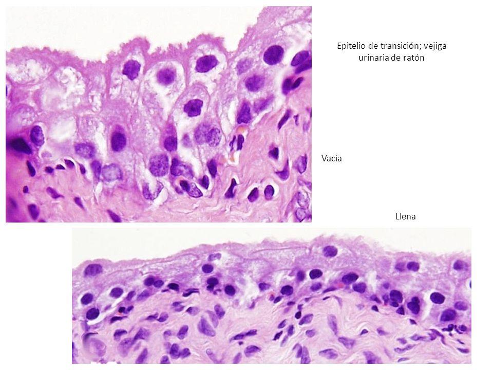http://webs.uvigo.es/mmegias/a-imagenes- grandes/epitelio_transicion.php Epitelio de transición; vejiga urinaria de ratón Vacía Llena