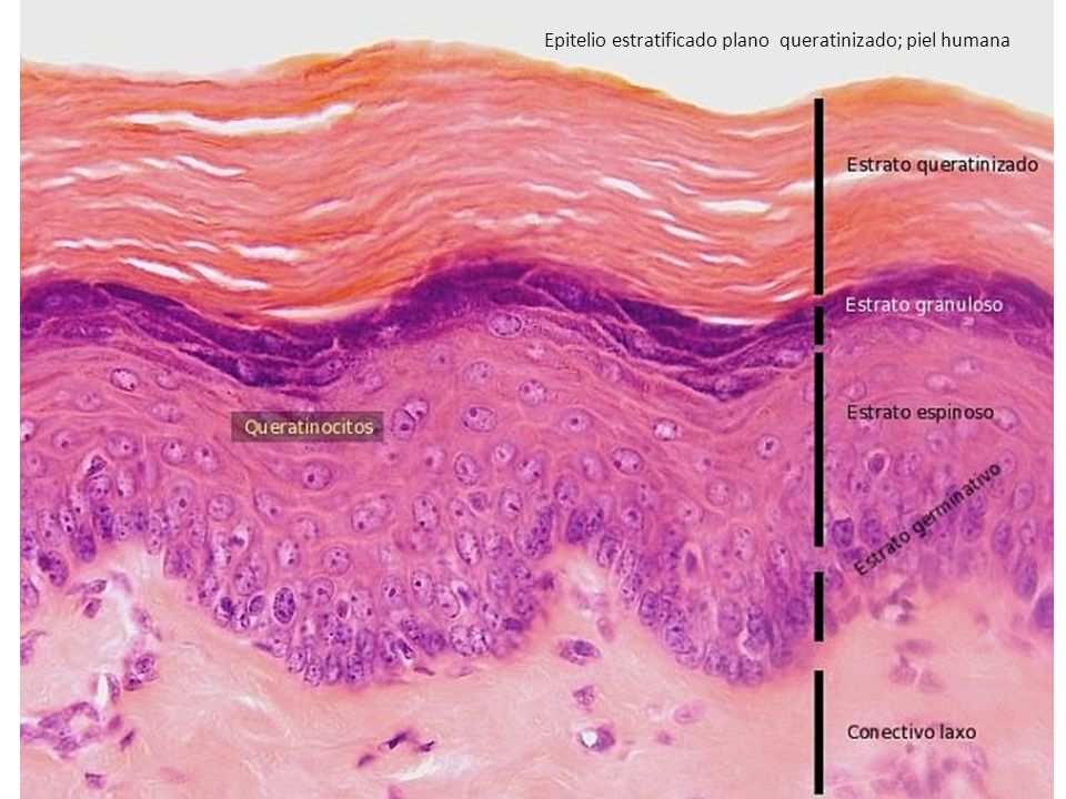 Epitelio estratificado plano queratinizado; piel humana