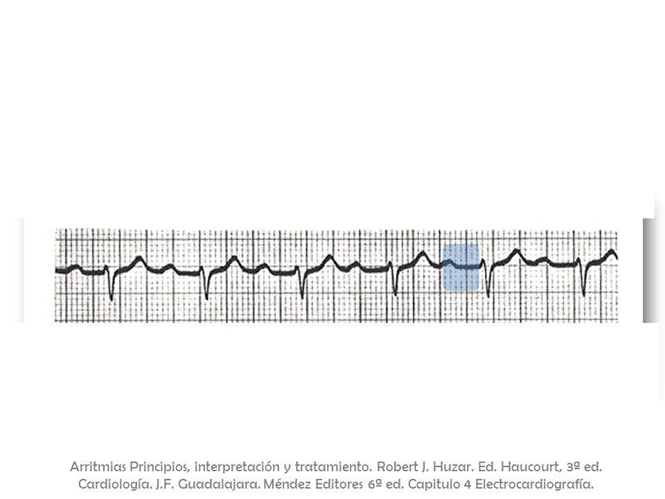 BAV de primer grado = PR > 0.2. s Arritmias Principios, interpretación y tratamiento. Robert J. Huzar. Ed. Haucourt, 3ª ed. Cardiología. J.F. Guadalaj