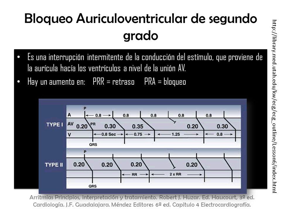Bloqueo Auriculoventricular de segundo grado Es una interrupción intermitente de la conducción del estímulo, que proviene de la aurícula hacía los ven