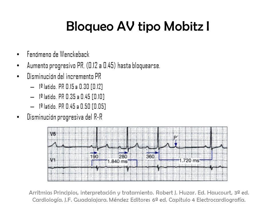 Fenómeno de Wenckeback Aumento progresivo PR, (0.12 a 0.45) hasta bloquearse. Disminución del incremento PR – 1º latido. PR 0.15 a 0.30 [0.12] – 1º la