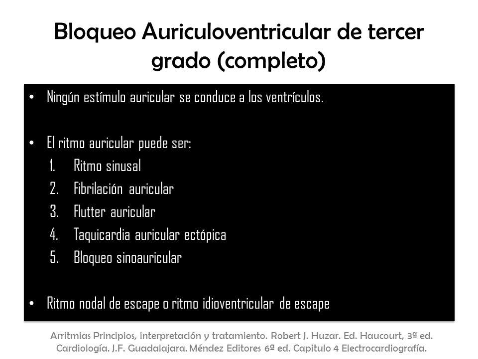 Bloqueo Auriculoventricular de tercer grado (completo) Ningún estímulo auricular se conduce a los ventrículos. El ritmo auricular puede ser: 1.Ritmo s