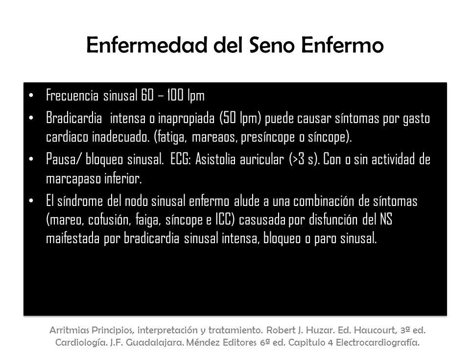 Enfermedad del Seno Enfermo Frecuencia sinusal 60 – 100 lpm Bradicardia intensa o inapropiada (50 lpm) puede causar síntomas por gasto cardiaco inadec