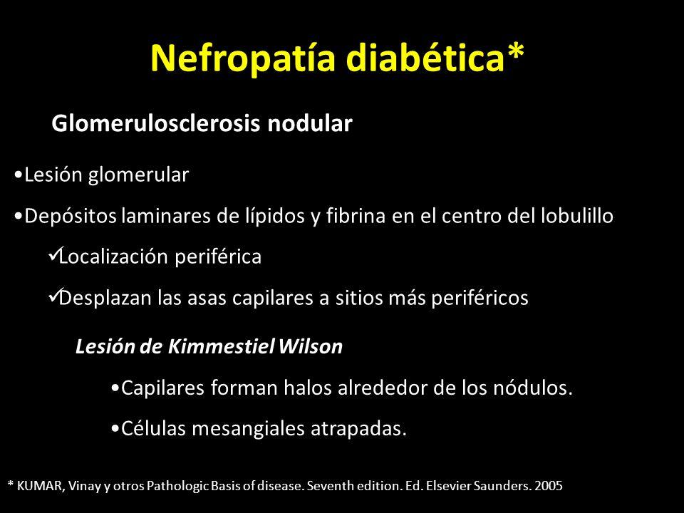 Nefropatía diabética* Glomerulosclerosis nodular Lesión glomerular Depósitos laminares de lípidos y fibrina en el centro del lobulillo Localización periférica Desplazan las asas capilares a sitios más periféricos Lesión de Kimmestiel Wilson Capilares forman halos alrededor de los nódulos.