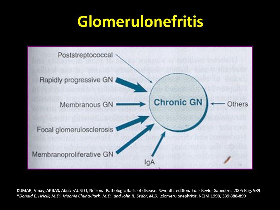 Glomerulonefritis KUMAR, Vinay; ABBAS, Abul; FAUSTO, Nelson. Pathologic Basis of disease. Seventh edition. Ed. Elsevier Saunders. 2005 Pag. 989 *Donal