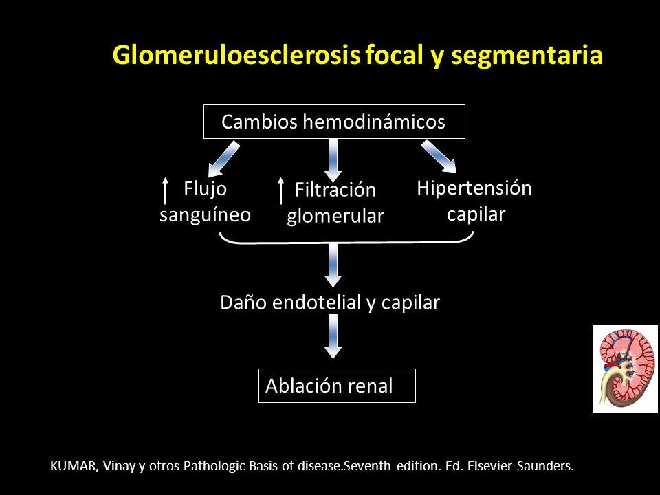 Ablación renal Glomeruloesclerosis focal y segmentaria Cambios hemodinámicos Filtraciónglomerular Flujosanguíneo Hipertensióncapilar Daño endotelial y