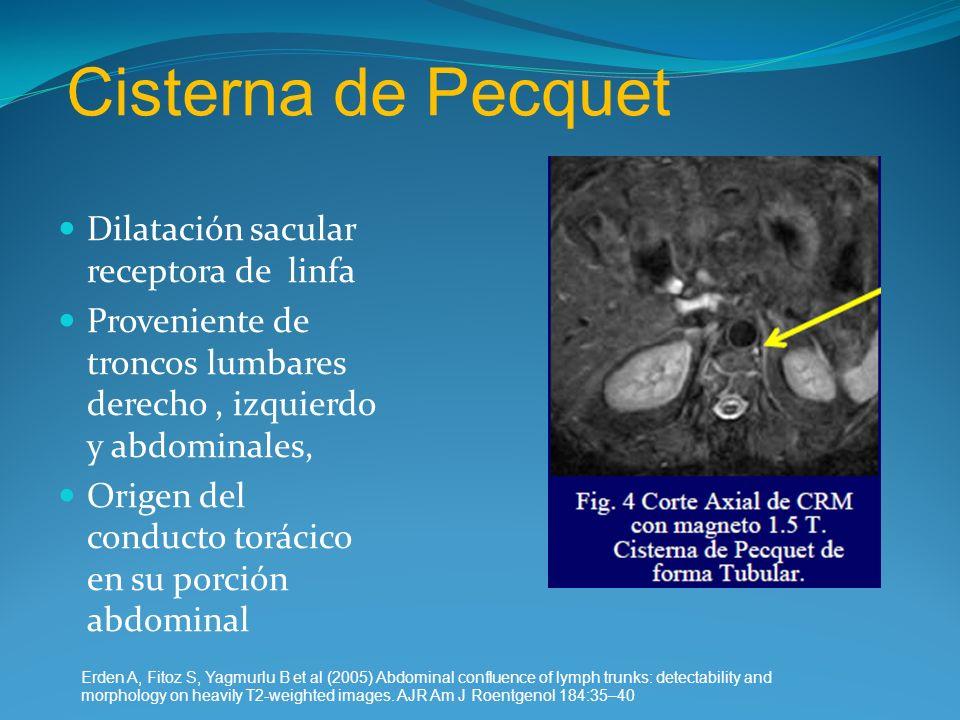 Cisterna de Pecquet Dilatación sacular receptora de linfa Proveniente de troncos lumbares derecho, izquierdo y abdominales, Origen del conducto toráci