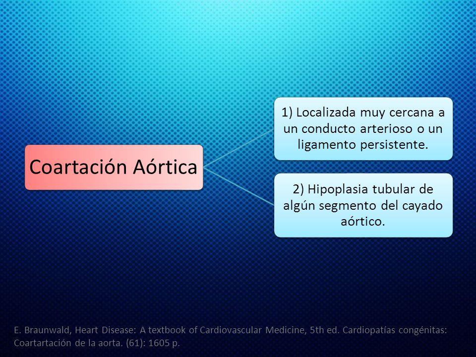 Coartación Aórtica 1) Localizada muy cercana a un conducto arterioso o un ligamento persistente. 2) Hipoplasia tubular de algún segmento del cayado aó