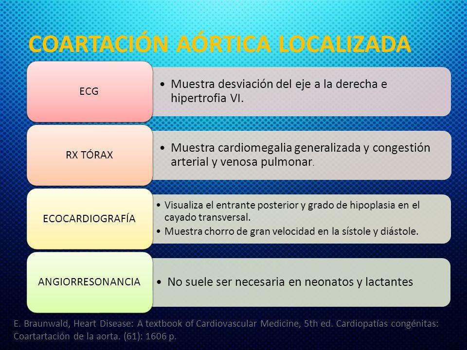 COARTACIÓN AÓRTICA LOCALIZADA Muestra desviación del eje a la derecha e hipertrofia VI. ECG Muestra cardiomegalia generalizada y congestión arterial y