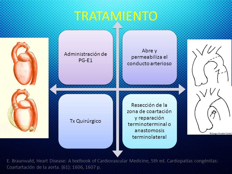TRATAMIENTO Administración de PG-E1 Abre y permeabiliza el conducto arterioso Tx Quirúrgico Resección de la zona de coartación y reparación terminoterminal o anastomosis terminolateral E.