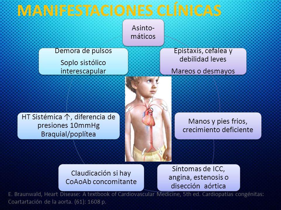 MANIFESTACIONES CLÍNICAS Asinto- máticos Epistaxis, cefalea y debilidad leves Mareos o desmayos Manos y pies frios, crecimiento deficiente Síntomas de