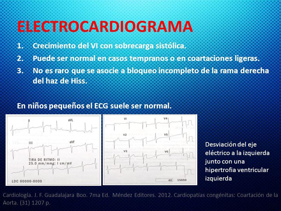 ELECTROCARDIOGRAMA 1.Crecimiento del VI con sobrecarga sistólica. 2.Puede ser normal en casos tempranos o en coartaciones ligeras. 3.No es raro que se