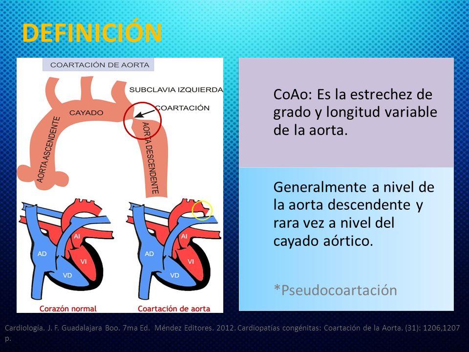 DEFINICIÓN CoAo: Es la estrechez de grado y longitud variable de la aorta. Generalmente a nivel de la aorta descendente y rara vez a nivel del cayado