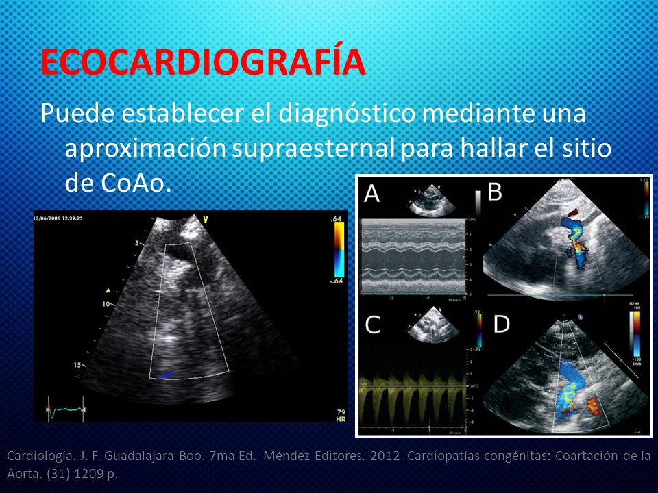 ECOCARDIOGRAFÍA Puede establecer el diagnóstico mediante una aproximación supraesternal para hallar el sitio de CoAo. Cardiología. J. F. Guadalajara B