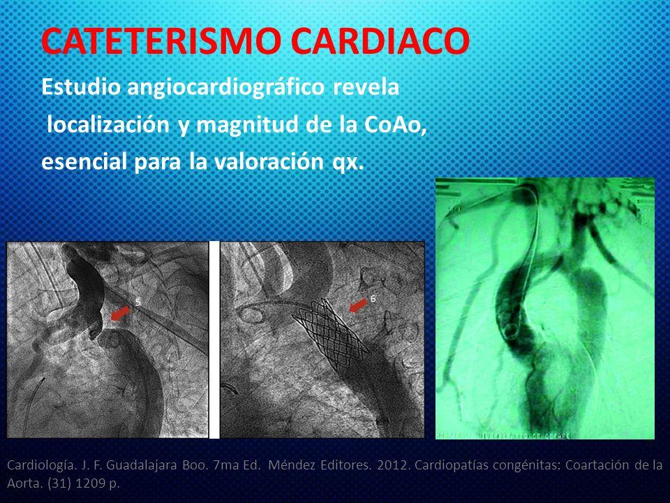 CATETERISMO CARDIACO Estudio angiocardiográfico revela localización y magnitud de la CoAo, esencial para la valoración qx. Cardiología. J. F. Guadalaj