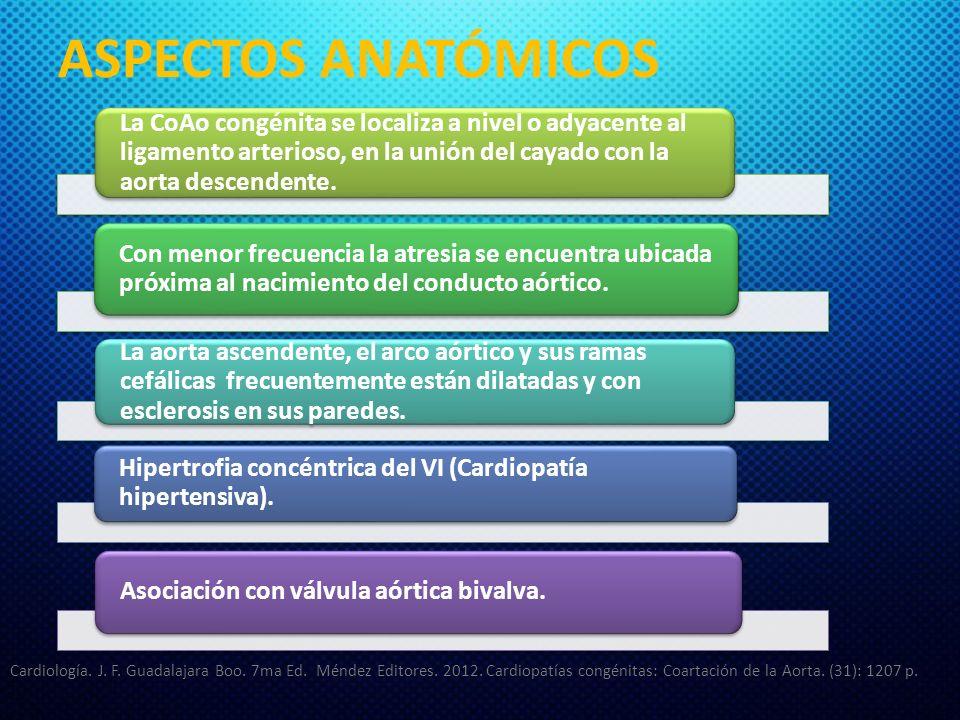 ASPECTOS ANATÓMICOS La CoAo congénita se localiza a nivel o adyacente al ligamento arterioso, en la unión del cayado con la aorta descendente.