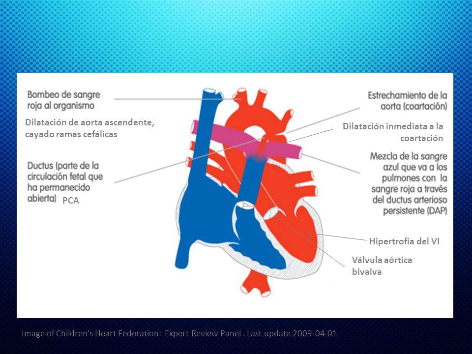 Dilatación de aorta ascendente, cayado ramas cefálicas Hipertrofia del VI Válvula aórtica bivalva Dilatación inmediata a la coartación PCA Image of Childrens Heart Federation: Expert Review Panel.