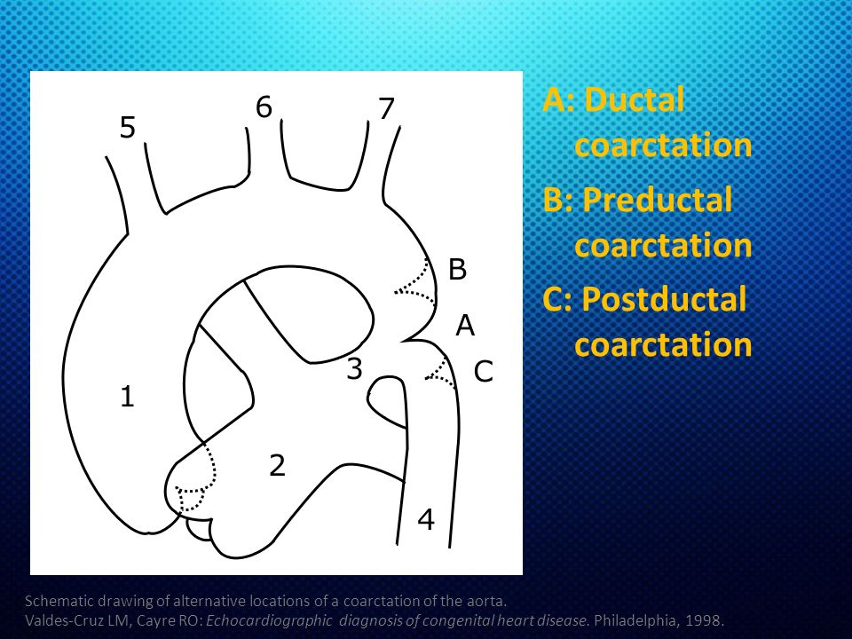 A: Ductal coarctation B: Preductal coarctation C: Postductal coarctation Schematic drawing of alternative locations of a coarctation of the aorta. Val