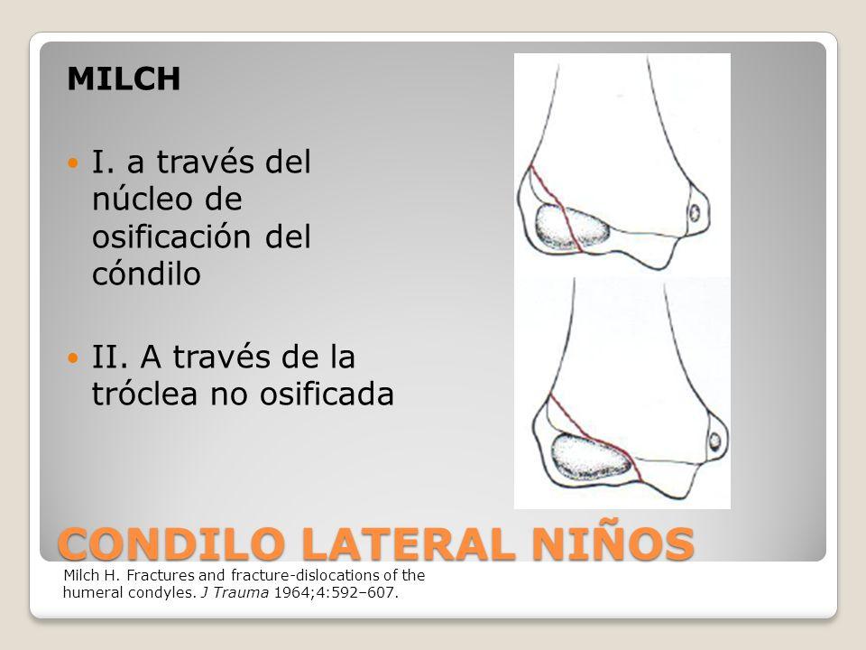 CONDILO LATERAL NIÑOS MILCH I.a través del núcleo de osificación del cóndilo II.