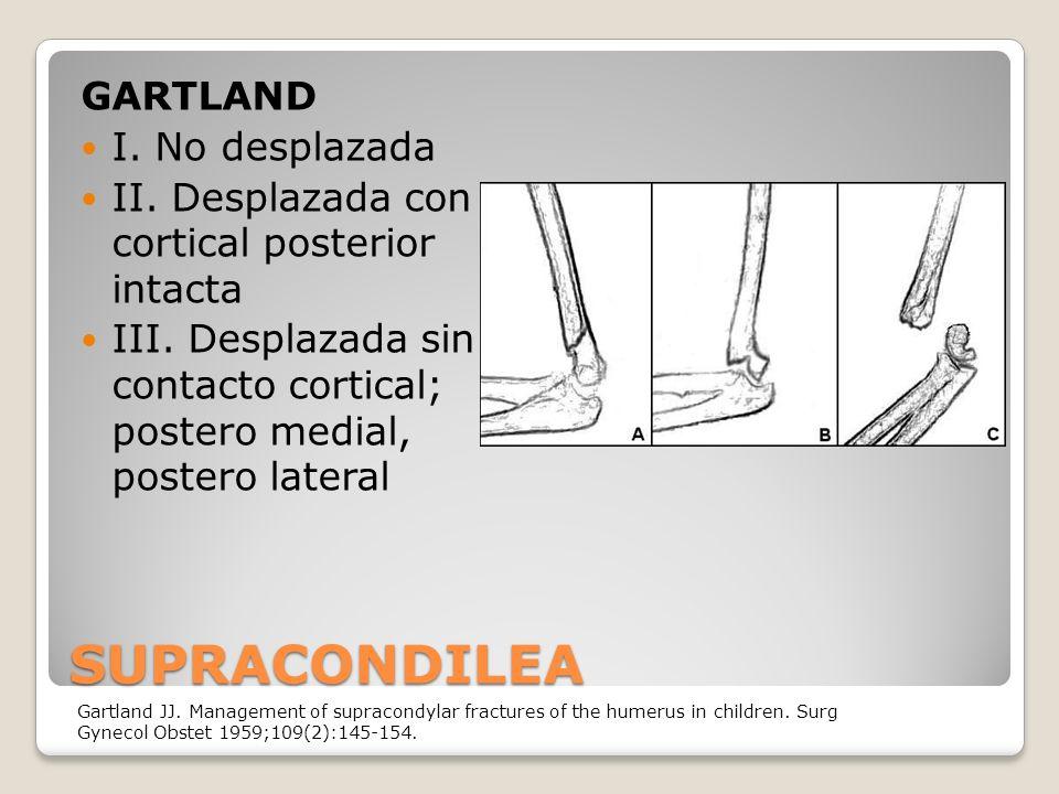 SUPRACONDILEA GARTLAND I.No desplazada II. Desplazada con cortical posterior intacta III.
