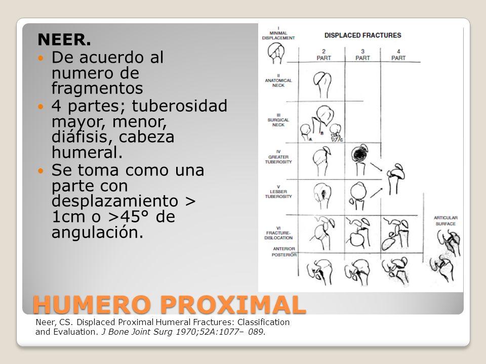 HUMERO PROXIMAL NEER.