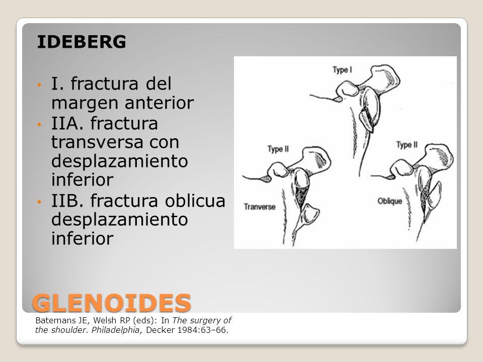 GLENOIDES IDEBERG I.fractura del margen anterior IIA.