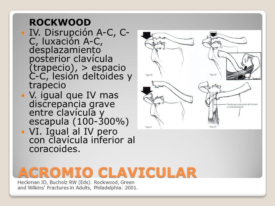 ACROMIO CLAVICULAR ROCKWOOD IV.