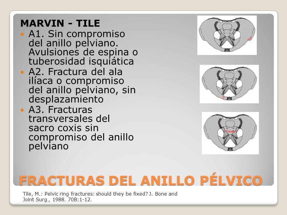 FRACTURAS DEL ANILLO PÉLVICO MARVIN - TILE A1.Sin compromiso del anillo pelviano.