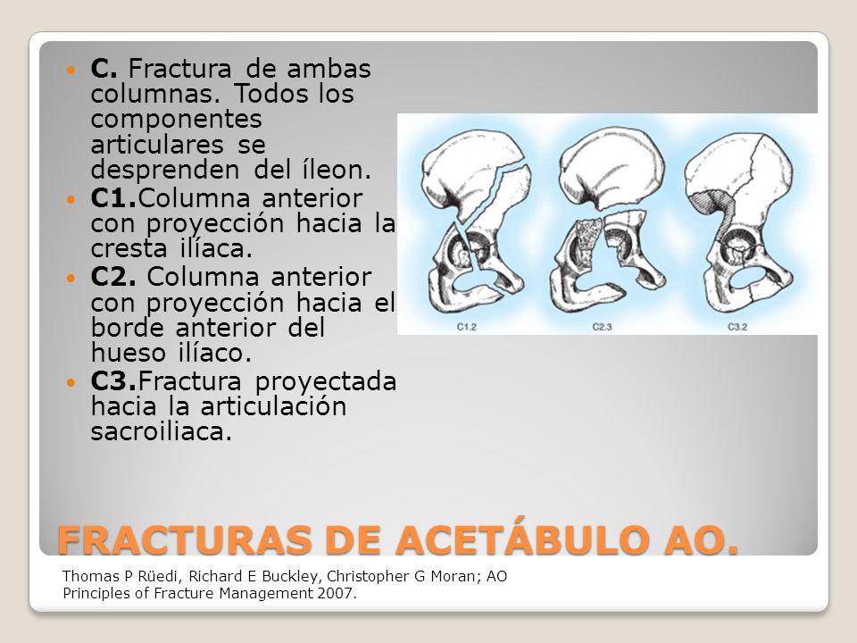 FRACTURAS DE ACETÁBULO AO.C. Fractura de ambas columnas.