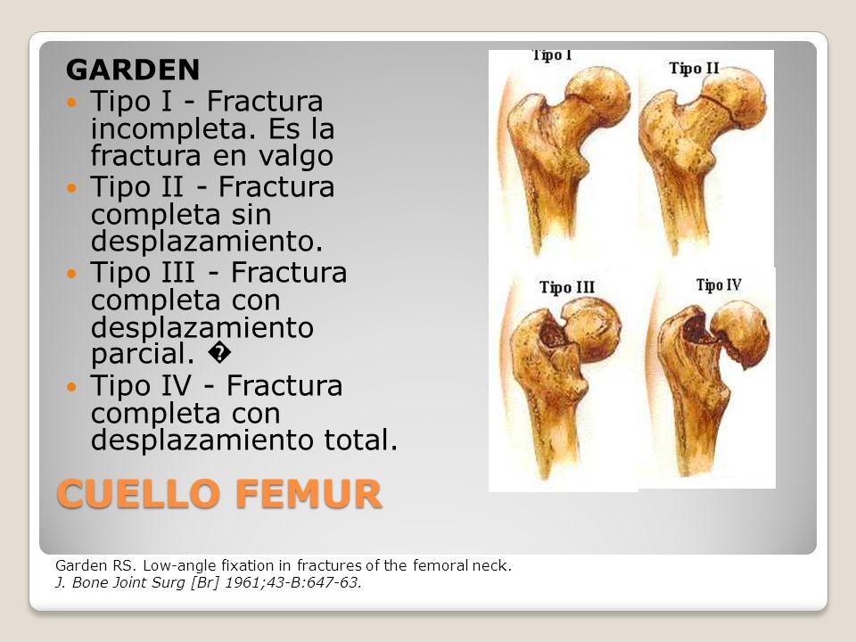 CUELLO FEMUR GARDEN Tipo I - Fractura incompleta.