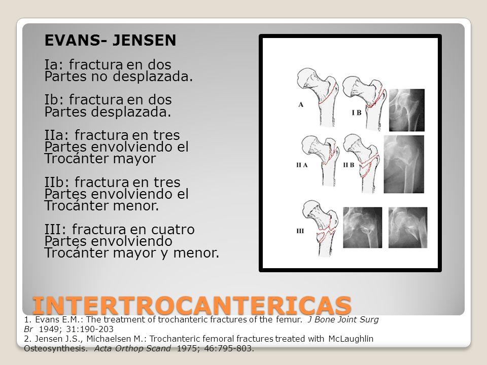 INTERTROCANTERICAS EVANS- JENSEN Ia: fractura en dos Partes no desplazada.