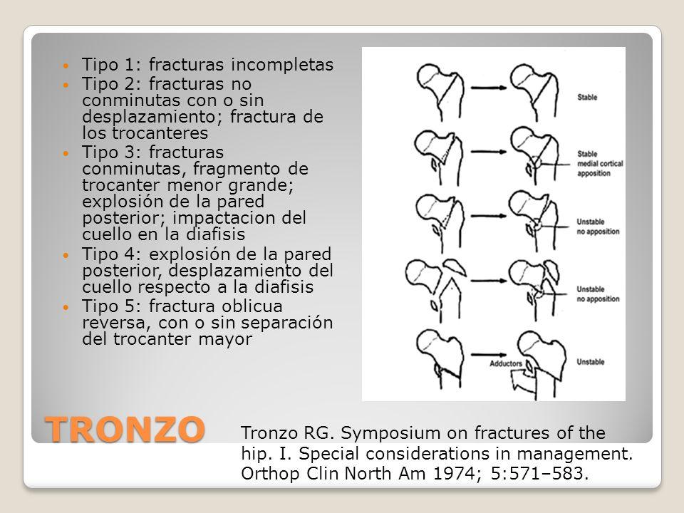 Tipo 1: fracturas incompletas Tipo 2: fracturas no conminutas con o sin desplazamiento; fractura de los trocanteres Tipo 3: fracturas conminutas, fragmento de trocanter menor grande; explosión de la pared posterior; impactacion del cuello en la diafisis Tipo 4: explosión de la pared posterior, desplazamiento del cuello respecto a la diafisis Tipo 5: fractura oblicua reversa, con o sin separación del trocanter mayor TRONZO Tronzo RG.
