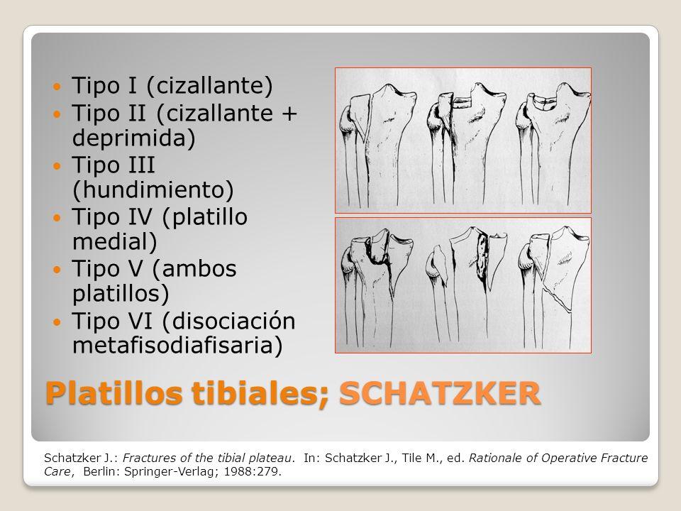 Platillos tibiales; SCHATZKER Tipo I (cizallante) Tipo II (cizallante + deprimida) Tipo III (hundimiento) Tipo IV (platillo medial) Tipo V (ambos platillos) Tipo VI (disociación metafisodiafisaria) Schatzker J.: Fractures of the tibial plateau.
