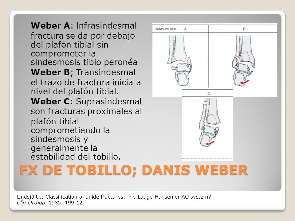 FX DE TOBILLO; DANIS WEBER Weber A: lnfrasindesmal fractura se da por debajo del plafón tibial sin comprometer la sindesmosis tibio peronéa Weber B; Transindesmal el trazo de fractura inicia a nivel del plafón tibial.