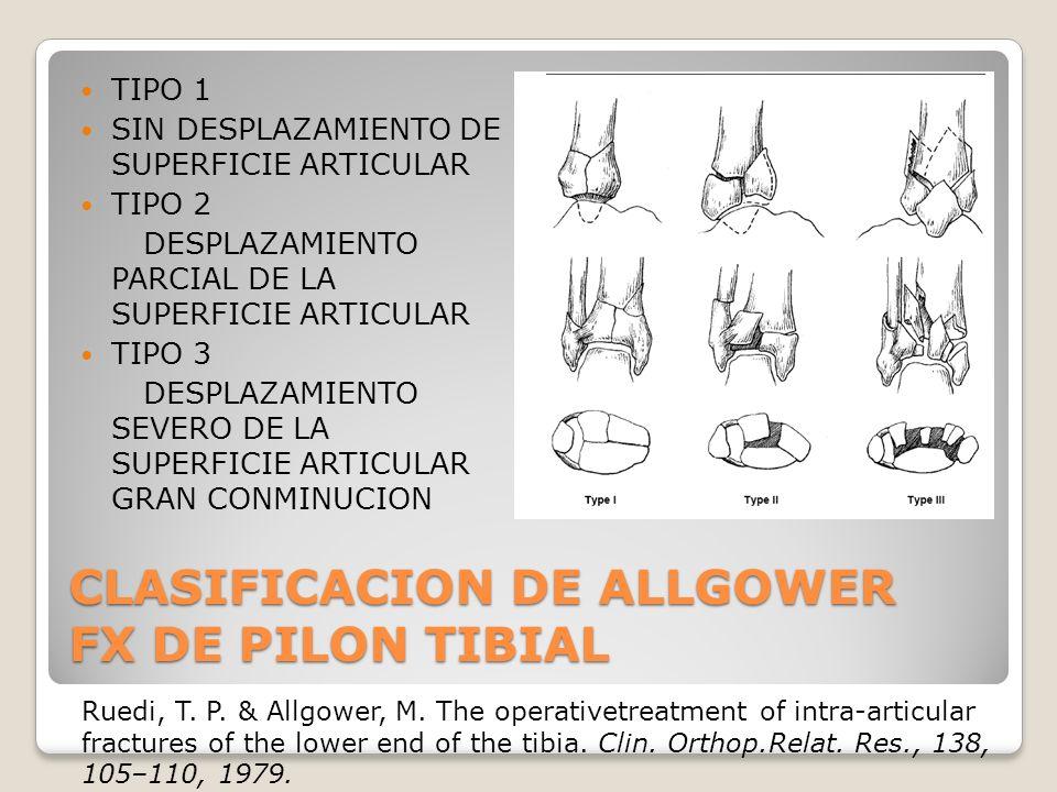 CLASIFICACION DE ALLGOWER FX DE PILON TIBIAL TIPO 1 SIN DESPLAZAMIENTO DE SUPERFICIE ARTICULAR TIPO 2 DESPLAZAMIENTO PARCIAL DE LA SUPERFICIE ARTICULAR TIPO 3 DESPLAZAMIENTO SEVERO DE LA SUPERFICIE ARTICULAR GRAN CONMINUCION Ruedi, T.