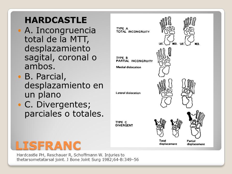 LISFRANC HARDCASTLE A.Incongruencia total de la MTT, desplazamiento sagital, coronal o ambos.