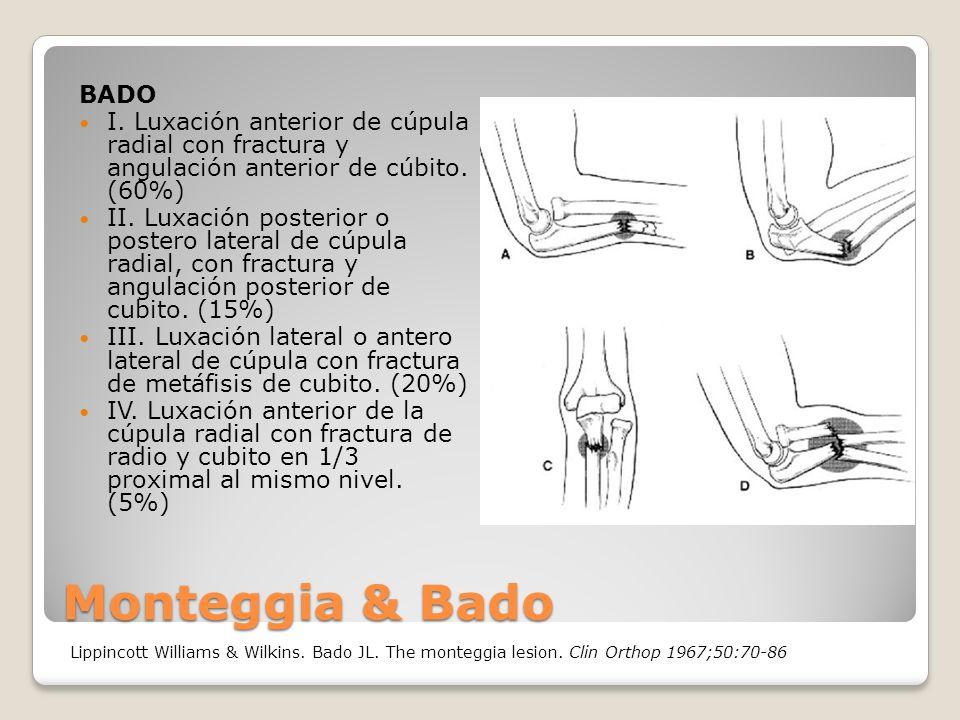 Monteggia & Bado BADO I.