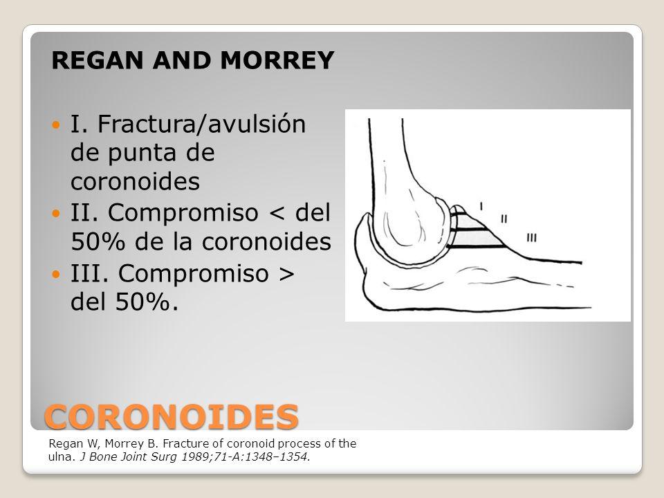 CORONOIDES REGAN AND MORREY I.Fractura/avulsión de punta de coronoides II.