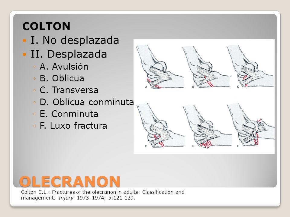 OLECRANON COLTON I.No desplazada II. Desplazada A.