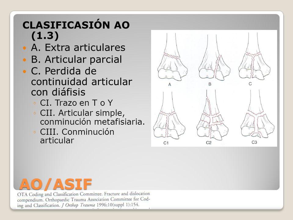 AO/ASIF CLASIFICASIÓN AO (1.3) A.Extra articulares B.