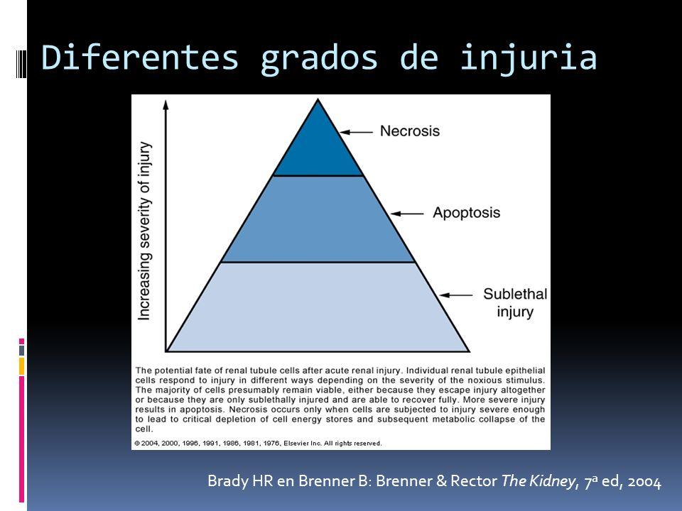 Brady HR en Brenner B: Brenner & Rector The Kidney, 7ª ed, 2004 Diferentes grados de injuria