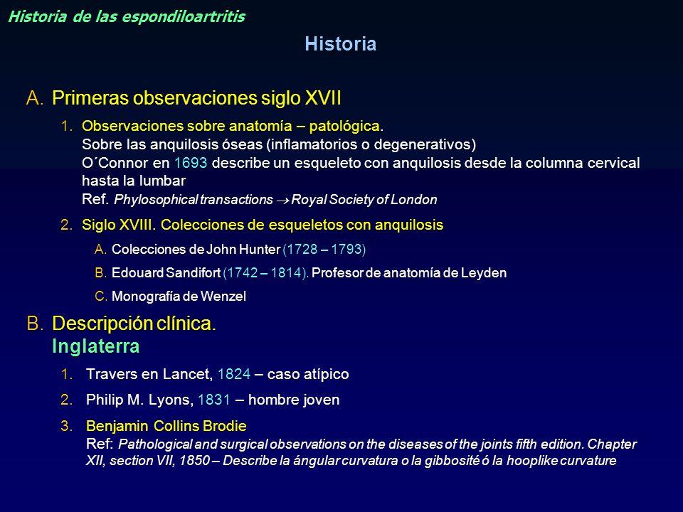 Historia de las espondiloartritis A.Primeras observaciones siglo XVII 1.Observaciones sobre anatomía – patológica. Sobre las anquilosis óseas (inflama