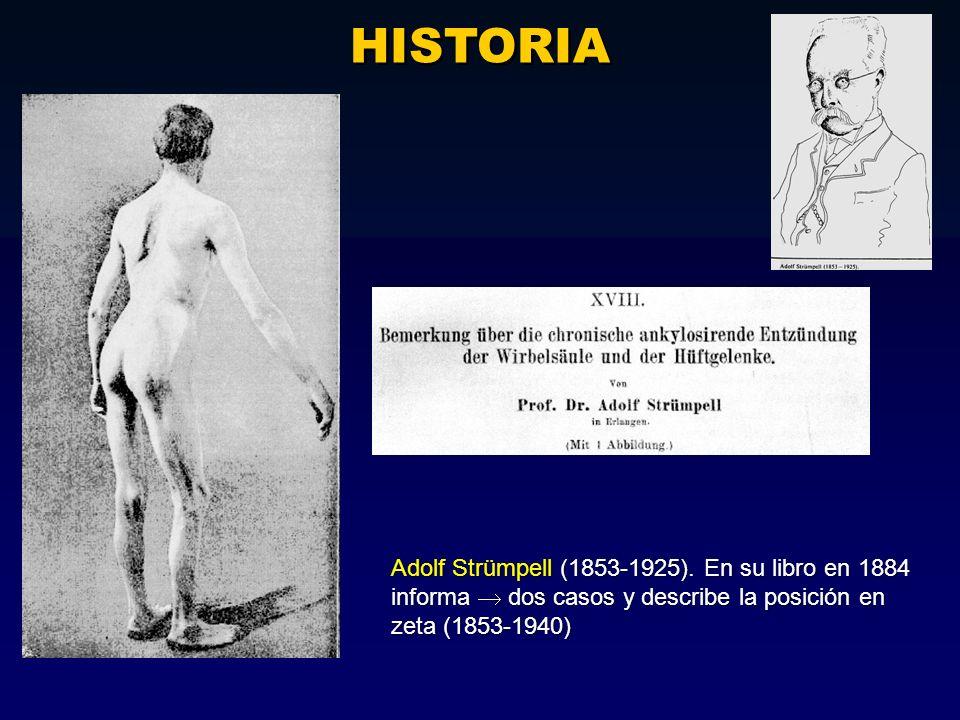 HISTORIA Adolf Strümpell (1853-1925). En su libro en 1884 informa dos casos y describe la posición en zeta (1853-1940)