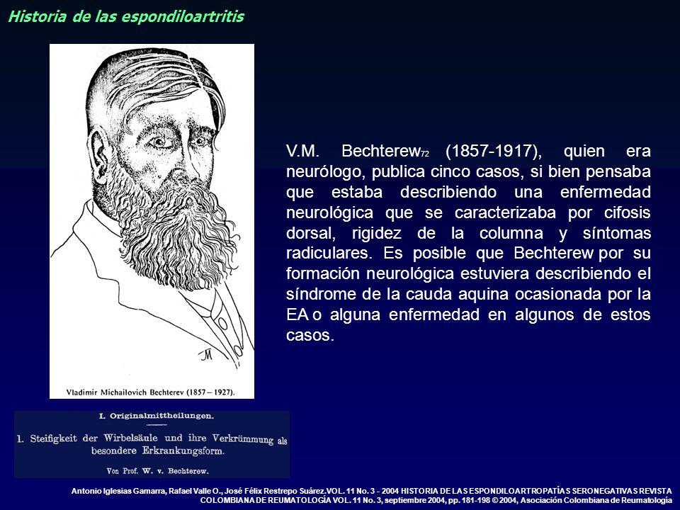 Historia de las espondiloartritis V.M. Bechterew 72 (1857-1917), quien era neurólogo, publica cinco casos, si bien pensaba que estaba describiendo una